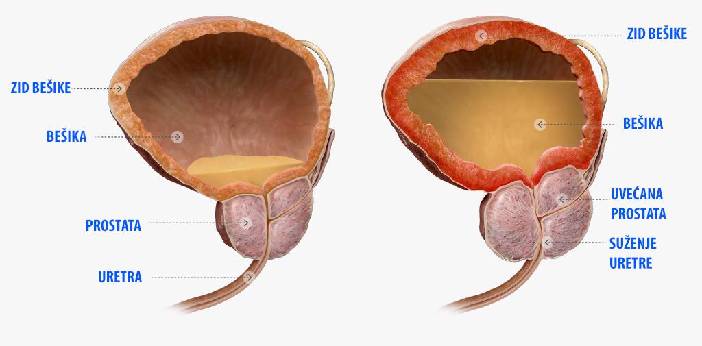 Rezultat slika za prostata